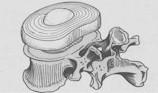entrainer disque intervertebral