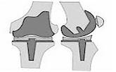 prothese-genoux-linkedin